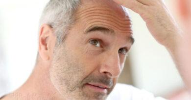 pertes de cheveux, Alopécie,perte de cheveux, cheveux qui tombent, quoi faire avec cheveux qui tombent, masque cheveux, santé de cheveux