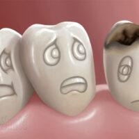 Les caries et les dents de lait