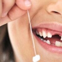 Tout sur le changement de dents de lait