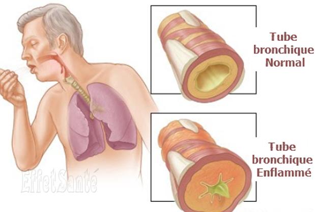 bronchite aiguë, bronchite , pneumonie, maladies respiratoires