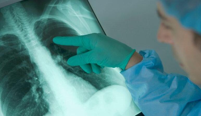 Emphysème pulmonaire, maladie du poumon, maladie pulmonaire, cancer du poumon