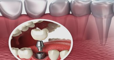 implant dentaire, dents, la dente, contri indication implant dentaire