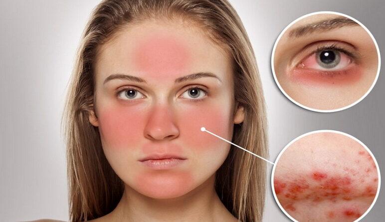 maladies de la peau, la rosacée, rosacée, cause rosacée