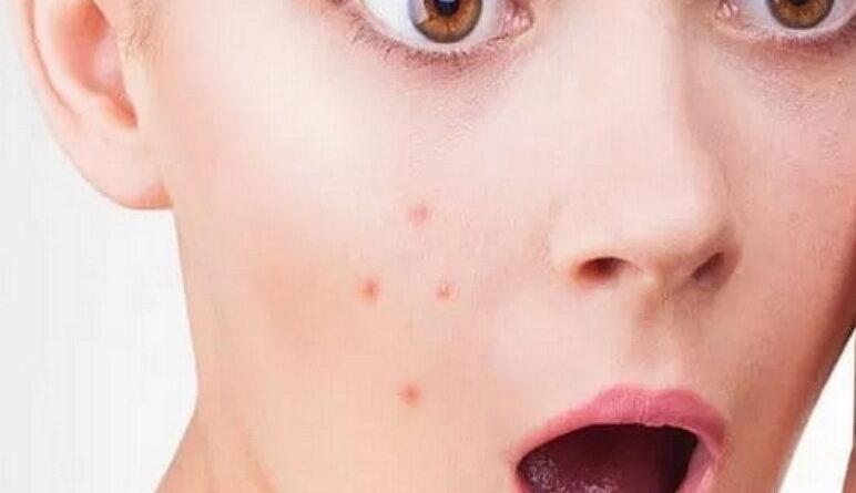 l'acné, maladies de la peau, boutons sur la peau