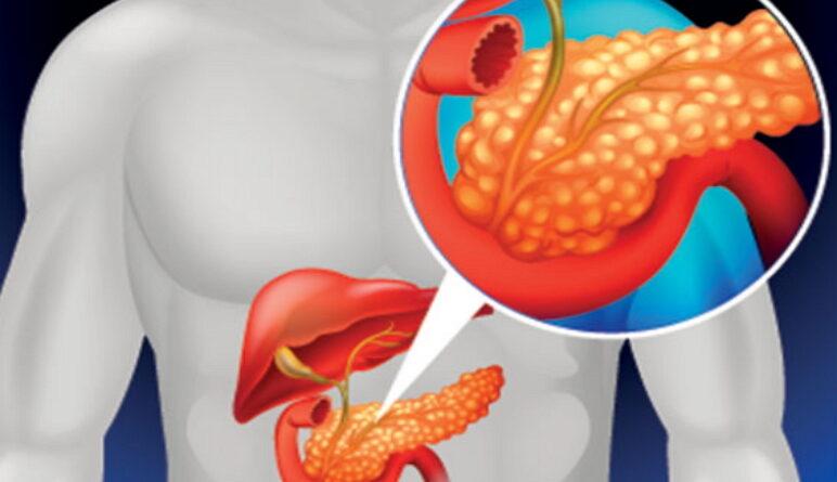 le pancréas, protéger le pancréas, maladies du pancréas