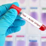 L'acide urique dans le corps. Signes que vous en avez un taux élevé