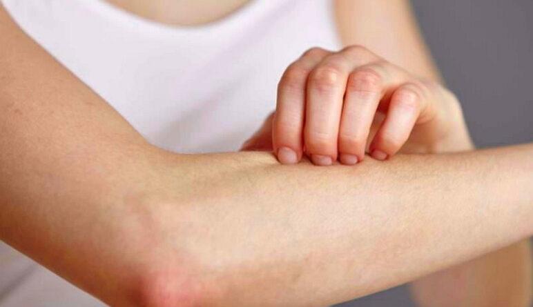 maladies de la peau, la peau, cancer de la peau, la dermatite, les démangeaisons,